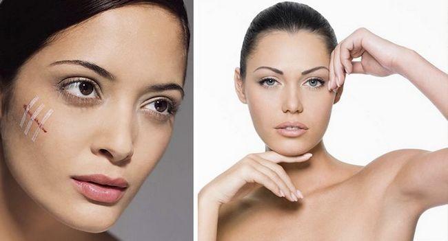 10 Способів як прибрати шрами і рубці від прищів на обличчі
