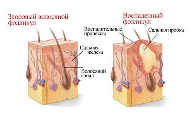 стан фолікул