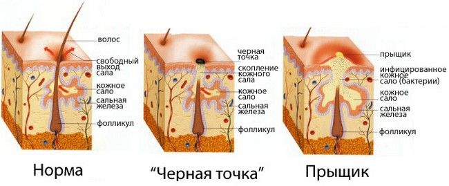 стан шкіри