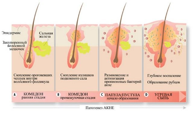 патогенез акне