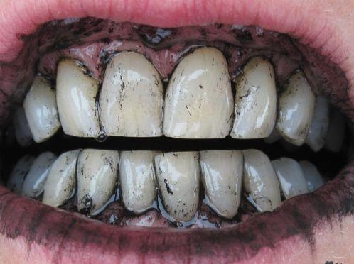 Як відбілити зуби активованим вугіллям?