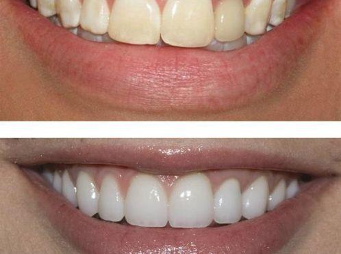 Як можна відбілити зуби самостійно?