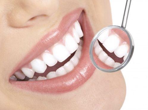 Отбліваем зуби вдома