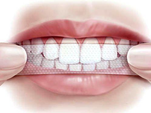 Смужки для відбілювання зубів
