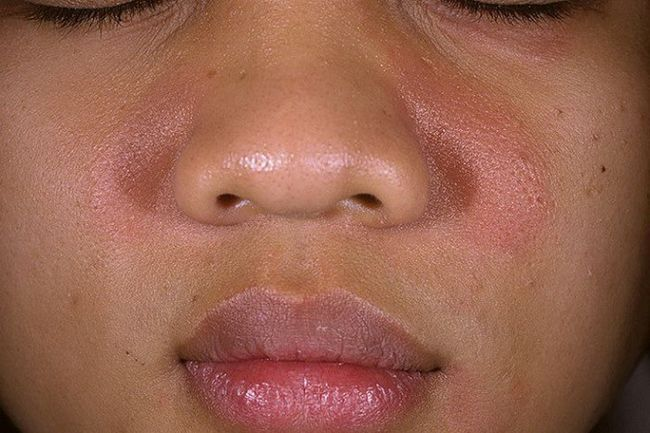 Що таке дерматит на обличчі і як його лікувати?