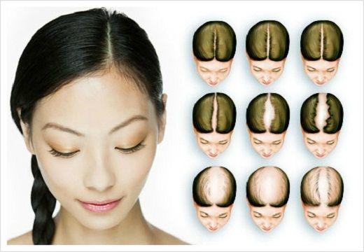 Що таке дифузне випадання волосся? Способи лікування