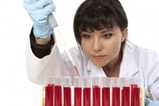 Що таке креатинін в крові?
