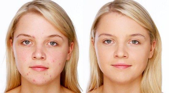 Демодекоз на обличчі: лікування препаратами та народними засобами