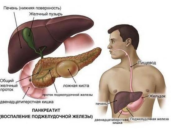 Панкреатит (запалення підшлункової залози)