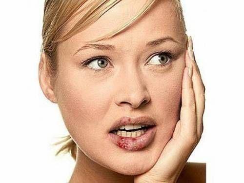 Герпес: загроза здоров`ю кожної сучасної жінки