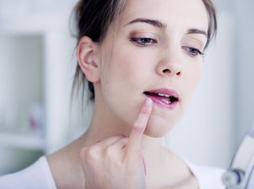 Лікуємо герпес на губі кремом