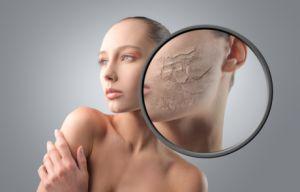 Ефективні засоби для боротьби з лущенням і сухою шкірою обличчя в зимовий період