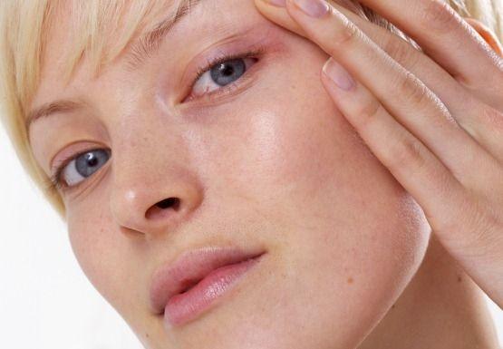 Як прибрати почервоніння на обличчі?