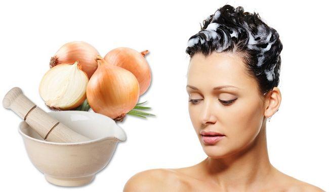 Існує думка, що цибульний сік прекрасно справляється з випаданням волосся