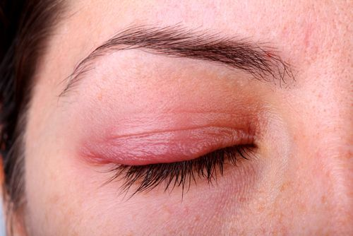 Як вилікувати демодекоз очей?