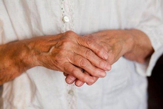 Лікування артриту пальців рук в домашніх умовах мазями, народними засобами