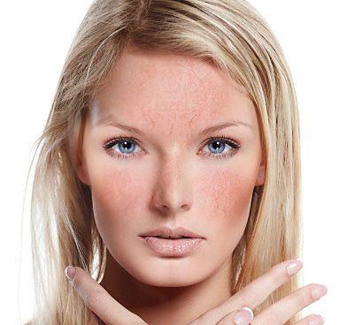 Лікування купероза на обличчі за допомогою препаратів і народних методів