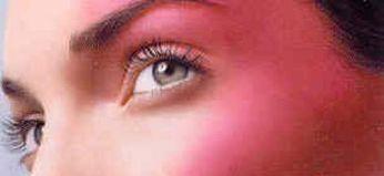 Лікування розацеа на обличчі: причини, ознаки