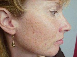 Лікування шрамів від прищів на обличчі
