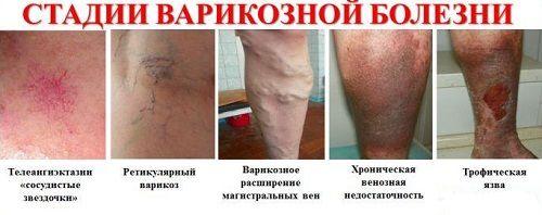 Лікування варикозного розширення вен на ногах