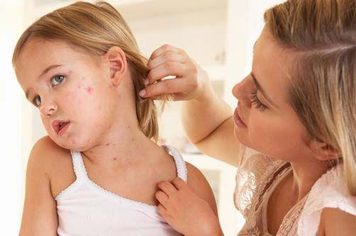 Методи лікування псоріазу в домашніх умовах