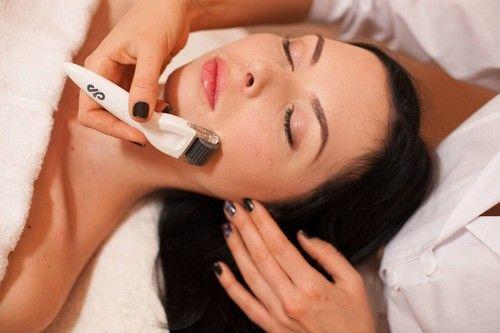 Мікронідлінг - лікування і омолодження шкіри сучасними способами