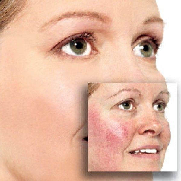 Лікування купероза на обличчі: причини і способи