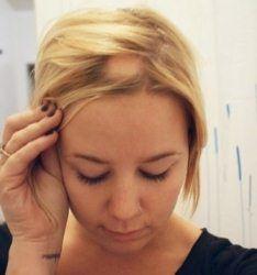 Осередкове випадання волосся у жінок, причини