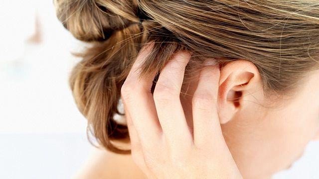 Лупа і випадання голос - симптоми грибка шкіри голови
