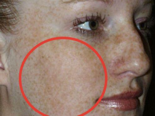Чому крем milk skin видаляє пігментні плями?