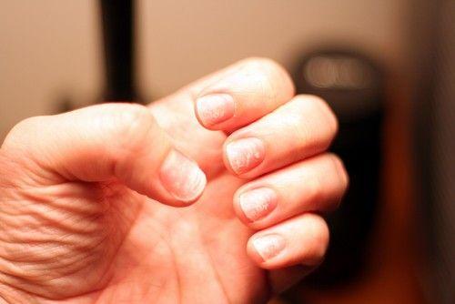 Чому шаруються нігті? Причини і лікування.