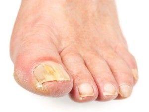 Препарати для лікування грибка нігтів