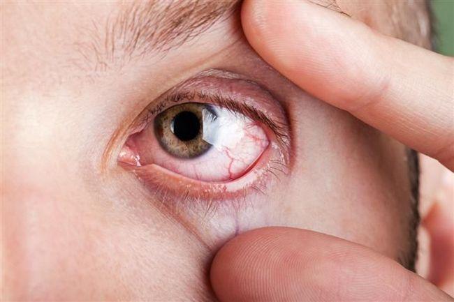 Причини і лікування почервоніння очей