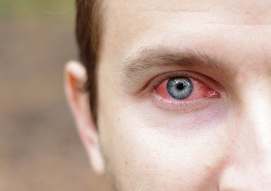 Протизапальні краплі для очей. Інструкція по застосуванню альбуцида, тобрексу ®