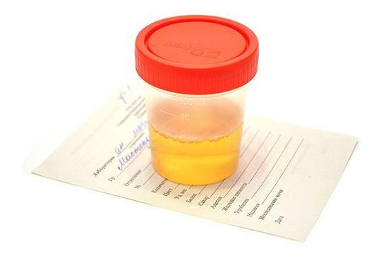 Солі оксалати в сечі у дитини: норма і відхилення. Яке лікування і дієта допоможуть прибрати кристали оксалату кальцію?