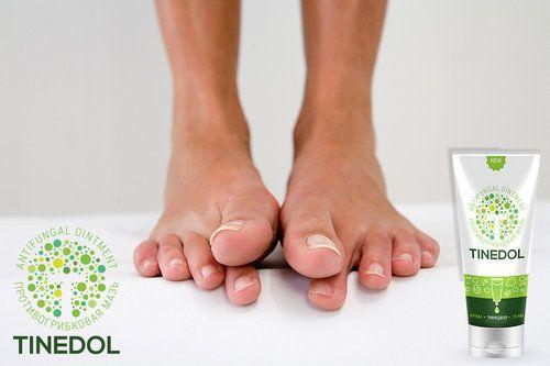 Tinedol - швидке і ефективне лікування грибка