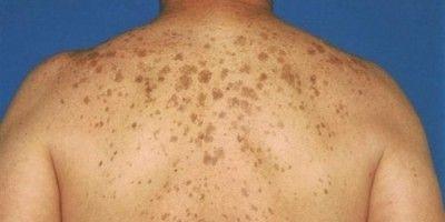 Види пігментних плям на шкірі і їх лікування