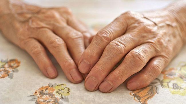 Запалення суглобів пальців рук: лікування препаратами та народними засобами