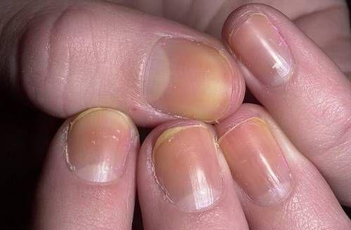 Жовті нігті на руках